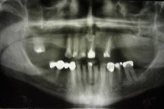 02. Przypadek I Pantomogram pacjenta przed rozpoczęciem rehabilitacji protetycznej