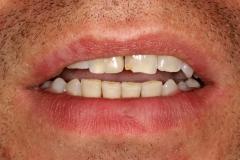 Ekspozycja zębów w swobodnym  rozchyleniu warg
