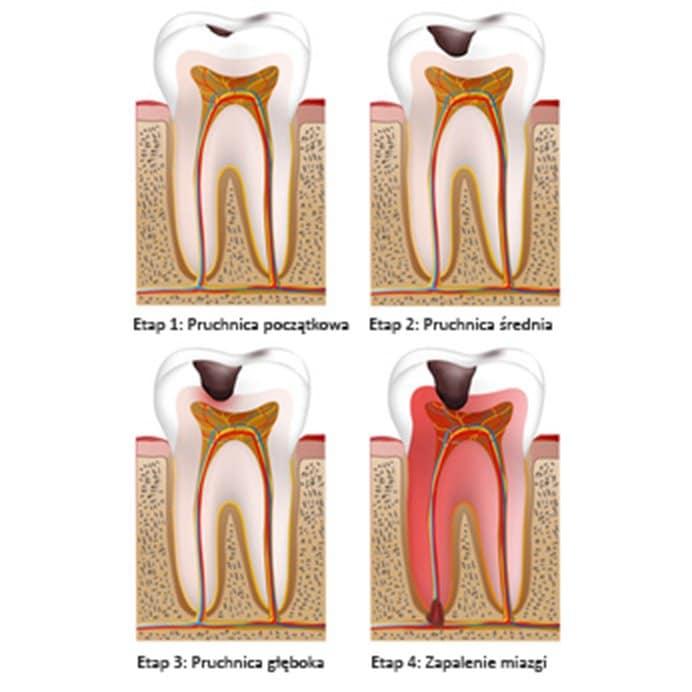budowa chorego zęba
