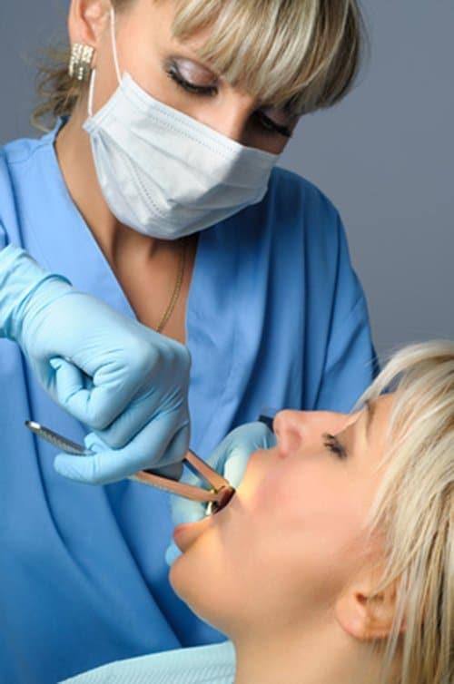 Zabieg usuwania zębów