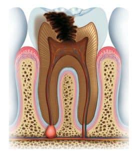 uszkodzony ząb