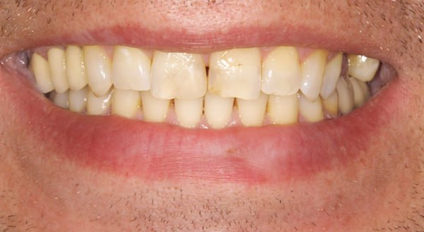 Zęby pacjenta przed zmianą